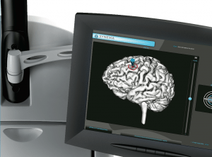 Neuronavigateur Syneika