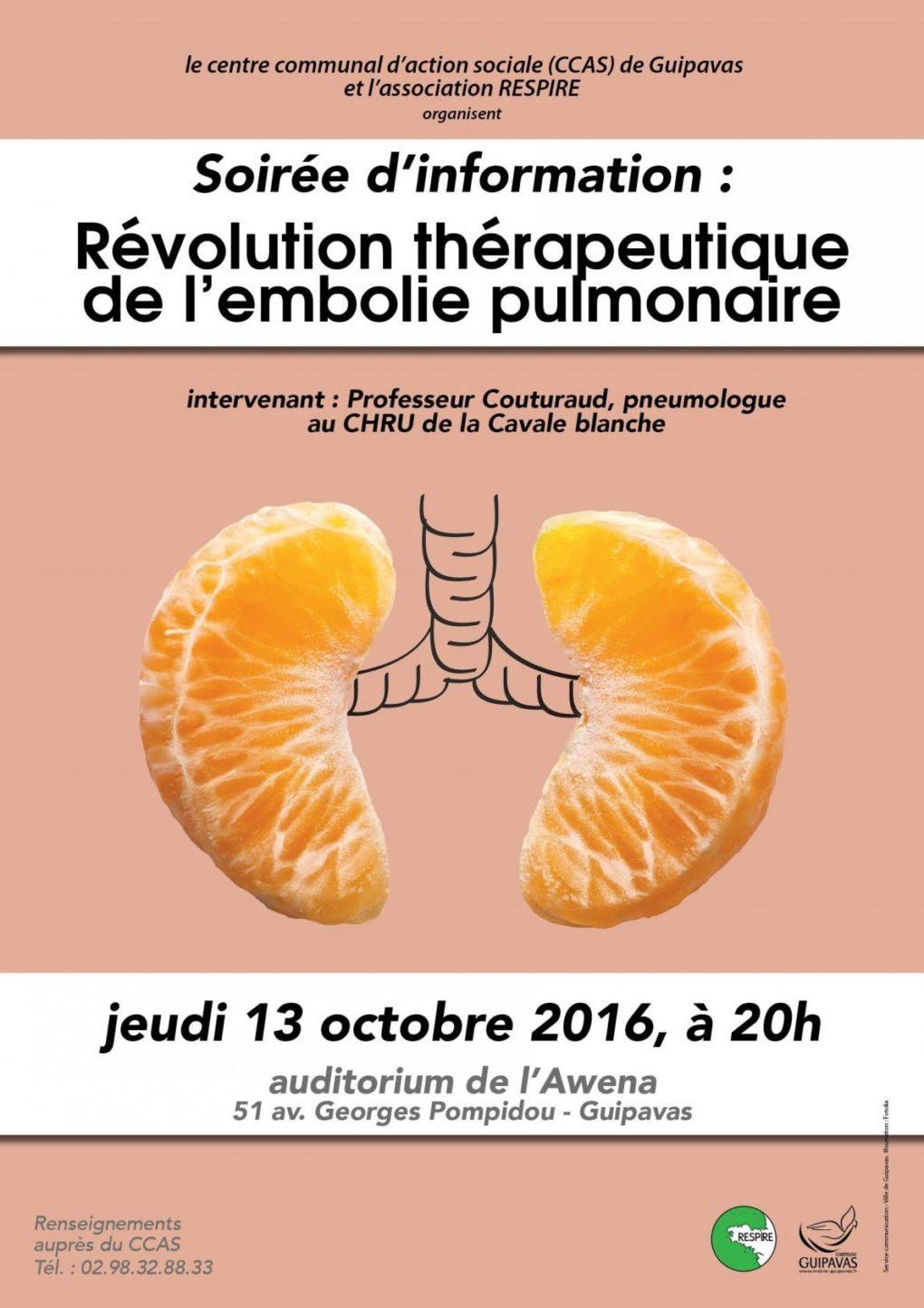 La révolution thérapeutique de l'embolie pulmonaire Guipavas