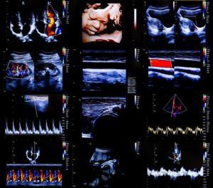 Les Ultrasons : trois expériences ludiques pour comprendre l'échographie-Doppler